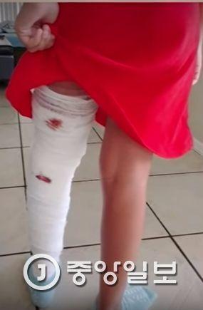 악어에 물렸다 탈출한 10살 소녀 [사진 유튜브 캡쳐]