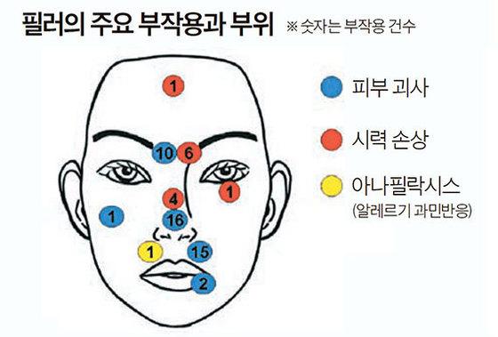 얼굴에 필러를 맞을 땐 심각한 부작용이 발생할 수 있다. 피부 괴사(파란색 원)는 코, 시력 손상(붉은색 원)은 미간, 아나필락시스(노란색 원)는 입술 위에 필러를 맞을 때 가장 많이 발생한다. [자료 : 미국 클리블랜드클리닉 성형외과 연구팀]