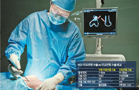 """연세건우병원 김성국 원장은 """"부분 인공관절 수술의 경우 자기 관절을 어느 정도 살릴 수 있어 환자의 부담이 작고 회복이 빠르다""""고 말했다. 프리랜서 조상희"""