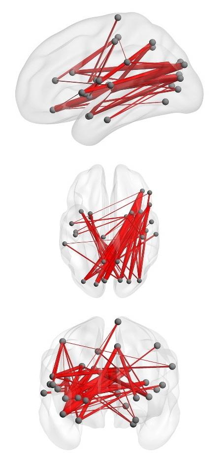 [그림3]사회 관계망 중심부에 있는 고령자의 뇌 연결성.중심부에 가까운 사람일수록 우측 전두엽과 두정엽·후두엽 사이 연결이 활발했다.[연세대 염유식 교수]