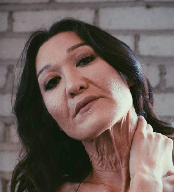 희귀 피부 질환인 EDS를 극복하고 패션모델로 활동 중인 26세 한국계 미국인 사라 굴츠. [사진 사라 굴츠]