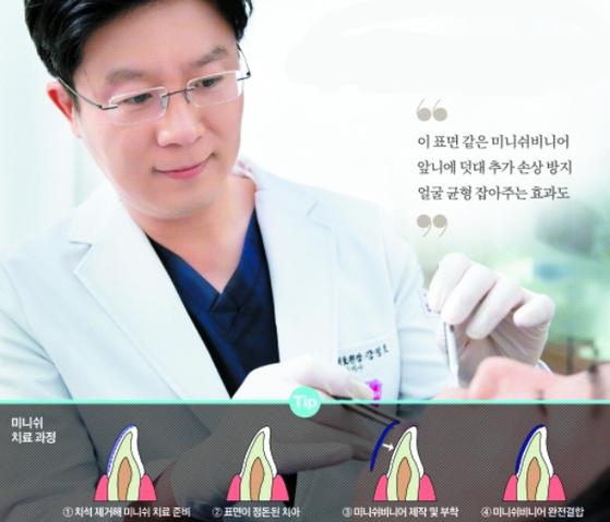 """강정호 원장은 """"치아를 건강한 상태로 오래 사용하려면 법랑질을 제대로 관리해야 한다""""고 말했다. 프리랜서 조혜원"""