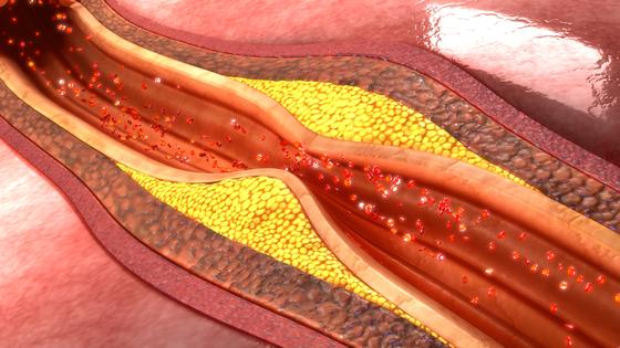 혈관이 좁아지는 질환 [중앙포토]
