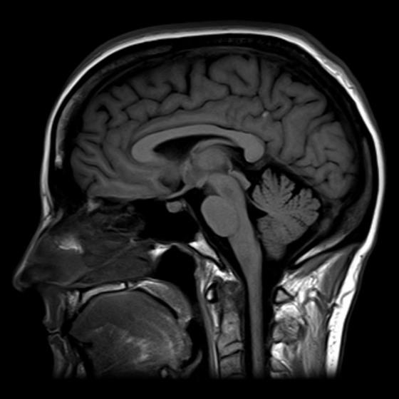 사람 뇌를 자기공명영상(MRI) 장치로 스캔한 그림. [위키피디아]