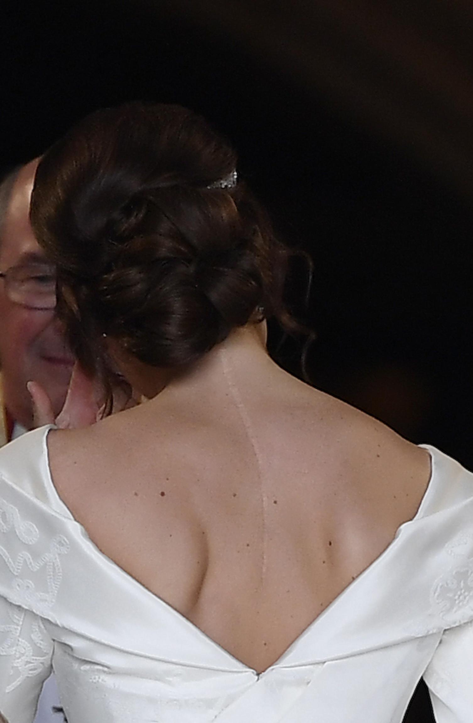 웨딩드레스를 입은 유지니 빅토리아 헬레나 공주의 뒷모습. 등의 흉터가 선명하게 보인다. [AP=연합뉴스]
