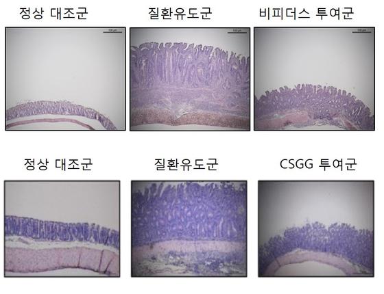 유산균 장 속 염증 제거에 효과 있다..신약 소재로 주목