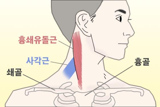 고개를 돌려서 힘 주면 목에 튀어나오는 양쪽 근육을 흉쇄유돌근이라고 한다. 흉쇄유돌근 바로 뒤에 있는 사각형 근육을 사각근이라고 한다. 이 부분이 상하게 되면 여러 증상이 나타나며 심하면 심장 주변의 통증을 유발하기도 한다. [그림 현예슬]