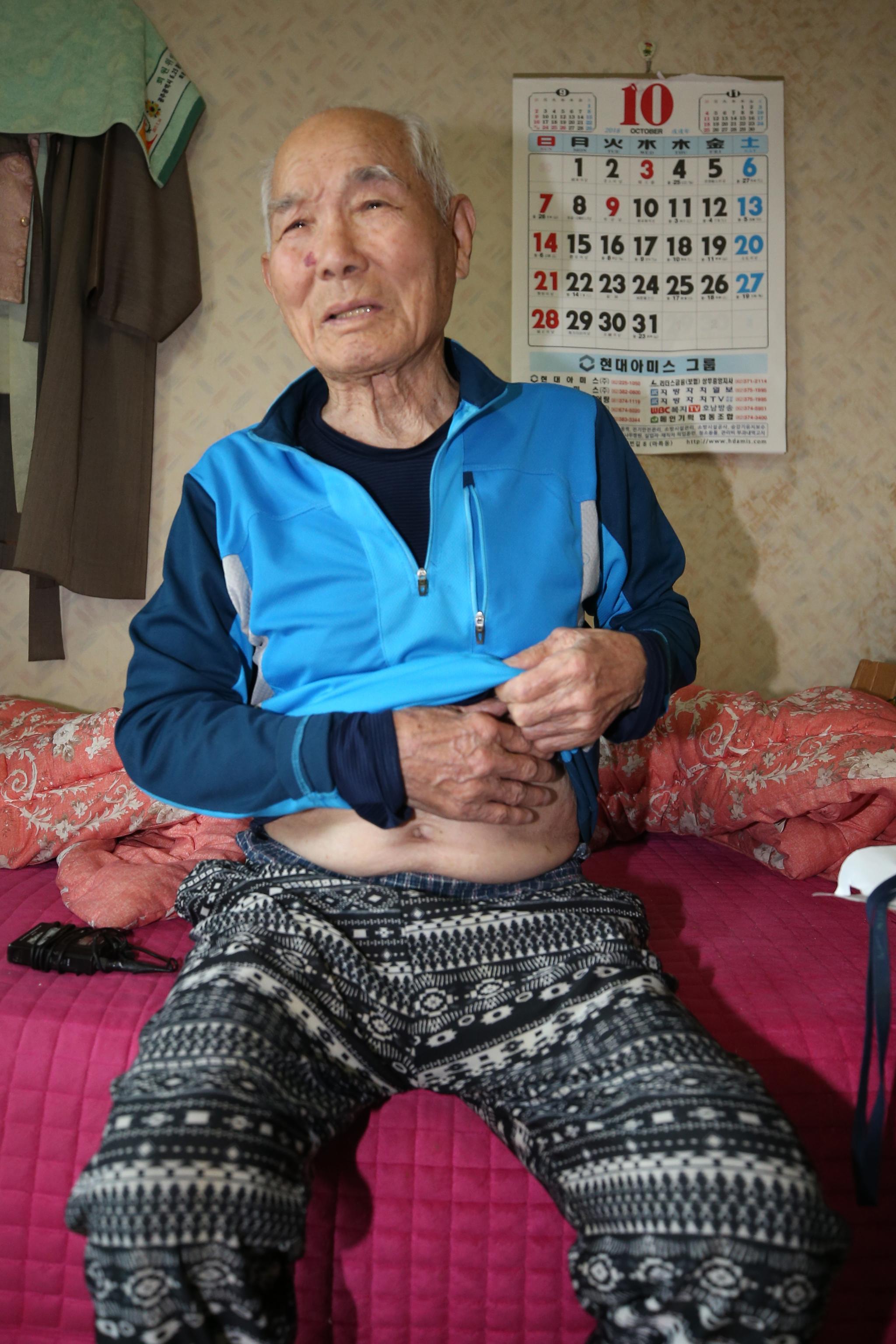 이춘식씨가 지난 25일 일제 강제징용 당시 제철소에서 얻은 상처를 보여주고 있다. [연합뉴스]