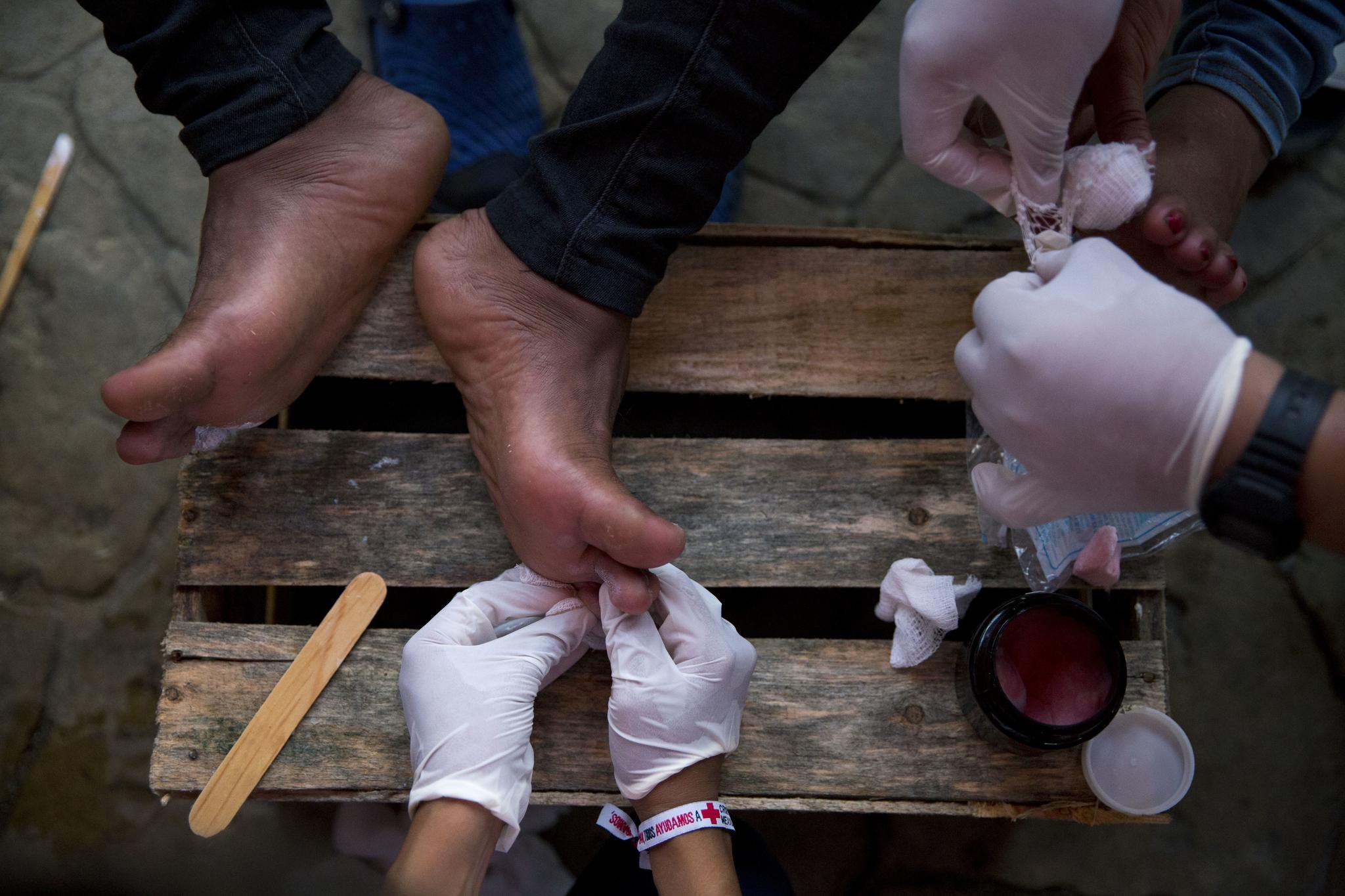 멕시코 적십자 자원봉사자들이 지난달 26일(현지시간) 멕시코 아리아가에서 이민자의 발을 치료하고 있다. [AP=연합뉴스]