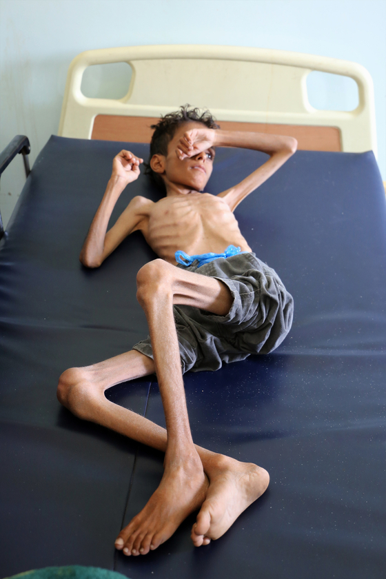 영양실조로 뼈만 앙상하게 남은 예멘 소년이 10월 30일 타이즈라는 도시의 병원에 누워 있다. 유엔은 예멘 이 사우디아라비아의 봉쇄로 지난 100년 이래 최악의 기아 상황에 직면해 있다고 지적했다. 인류가 1차대전이 끝난 지 100년이 되는 지금까지 전쟁의 비극에서 배운 게 없다는 개탄의 소리가 나오는 이유다. [AFP=연합뉴스]