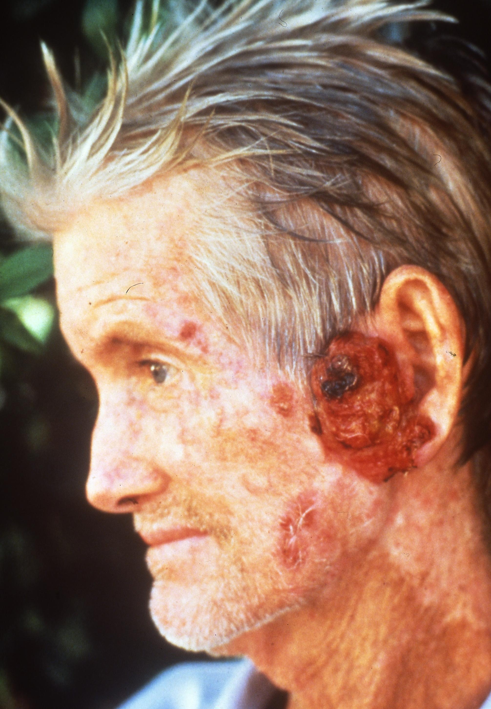 피부암 환자의 모습 [중앙포토]