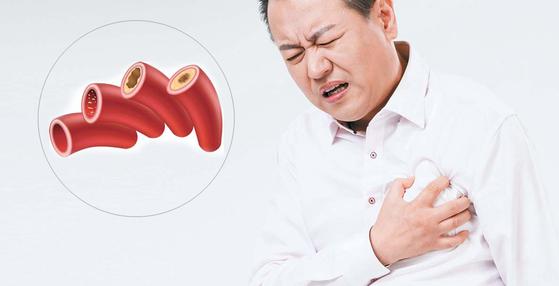 혈액 속 LDL 콜레스테롤 수치가 높으면 혈관이 서서히 좁아져 뇌졸중·심근경색 등 심뇌혈관 질환 위험이 커진다.