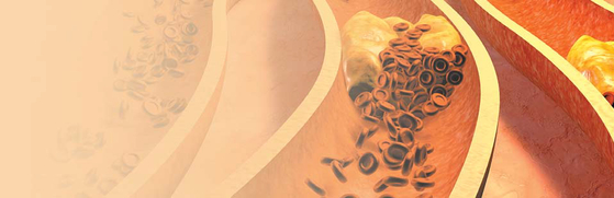 [건강한 가족] 폴리코사놀의 효능…플라크 개선, 혈소판 응집 억제 심뇌혈관 질환 예방 도와