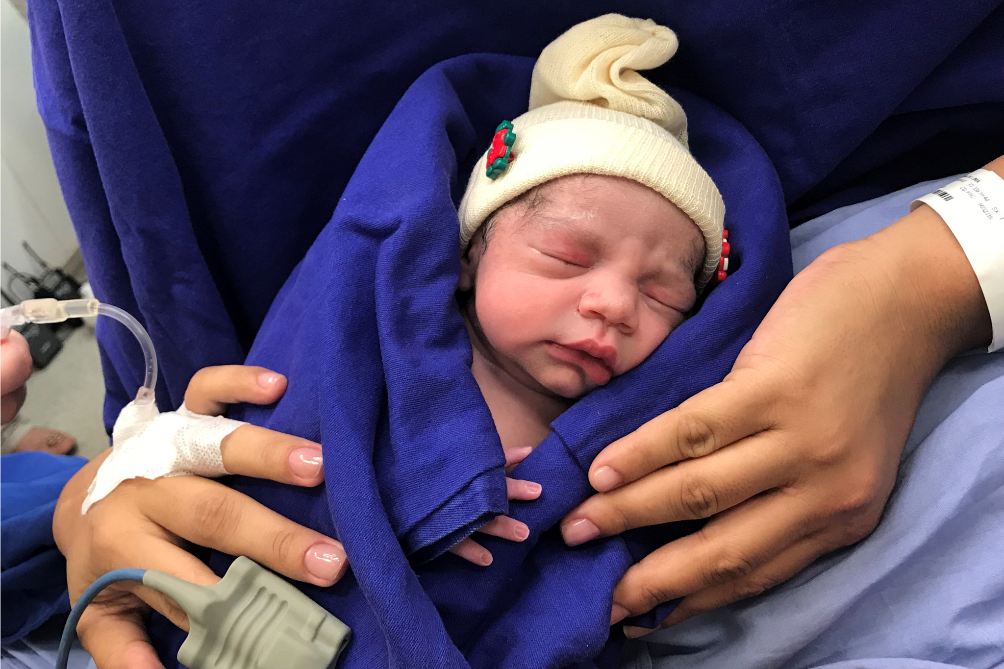 사망한 여성의 자궁을 이식받은 32세 여성이 건강한 여자아이를 출산했다. 사진은 지난해 12월 15일 출산 당시 신생아의 모습. [AP=연합뉴스]