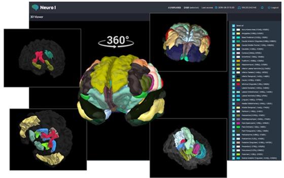 이건호 조선대학교 치매국책연구단장 연구팀이 한국인 표준뇌지도를 활용해 개발한 치매 예측의료기기 '뉴로아이'(NeuroAI)는 지난 9월식품의약품안전처 인증을 획득했다. [사진 조선대학교]