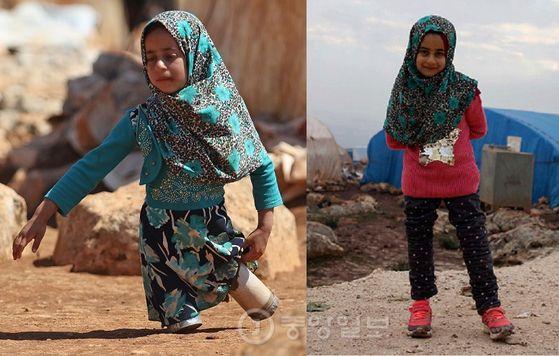 시리아 난민 캠프에서 '깡통 의족'을 끌고 살아가던 여덟살 소녀 마야가 터키 적신월사 등의 도움으로 정상적인 의족을 착용하게 돼 환하게 웃고 있다. [중앙포토]