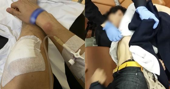 지난 11월 24일 서울 강남에 위치한 클럽 '버닝썬'에서 집단폭행을 당했다는 주장이 제기됐다. 김모(28)씨가 자신의 피해 증거로 올린 사진. [사진 온라인 커뮤니티 보배드림]