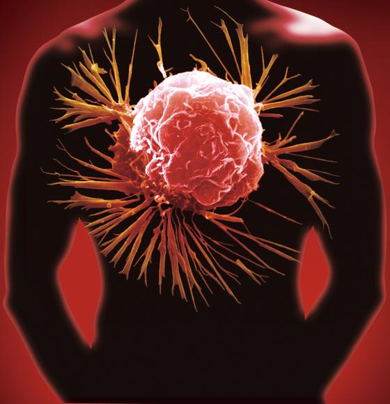 국내연구진이 45세 미만에서 발생하는 조기발병위암의 원인을 밝혀냈다. [중앙포토]