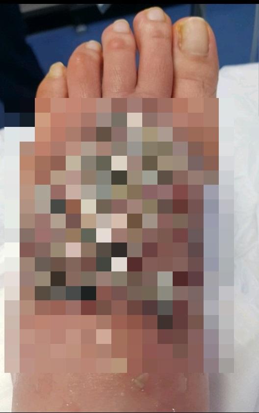 """""""한예슬 의료사고 대응 부러워""""...문신 지우려다 3도 화상"""