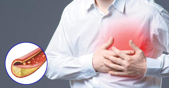 [건강한 가족] 양질의 좋은 콜레스테롤 늘려 혈관 보호하는 역할 톡톡히