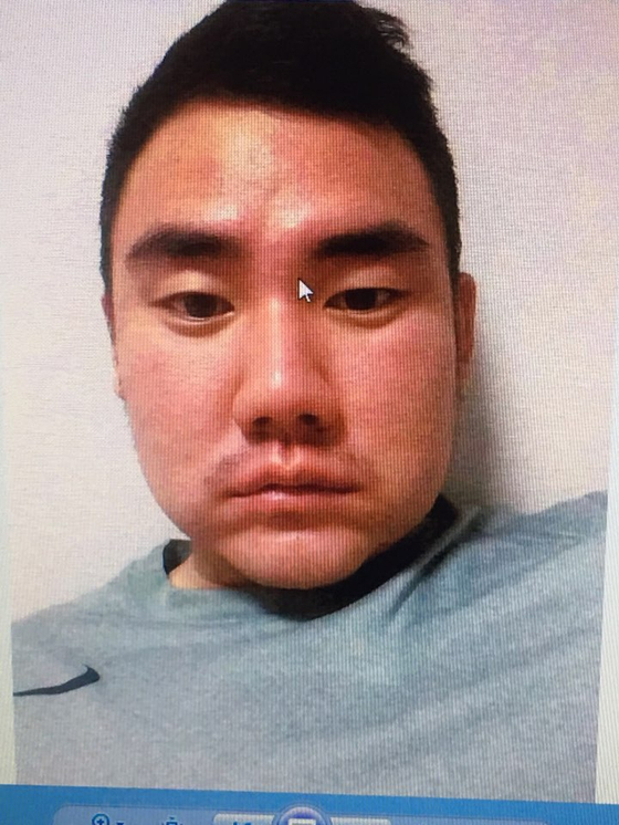 지난 2015년 5월 이택근에게 방망이로 머리를 맞고 얼굴이 부어있는 문우람의 모습. [사진 문우람]