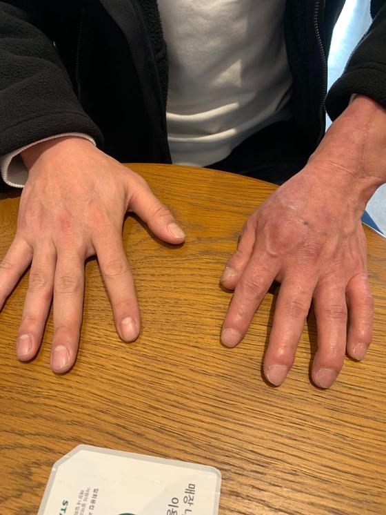 팔 이식 수술 후 두번째 새해를 맞은 손진욱씨. 우측에 보이는 왼쪽 팔이 수술받은 팔이다. 김윤호 기자