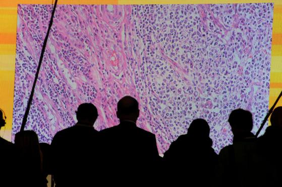 국내 연구진이 세계 최초로 림프절에 전이된 암 세포의 생존전략을 밝혀냈다. 포도당을 주 에너지원으로 하다가, 면역기관인 림프절 속에서는 지방산을 연료로 사용하는 게 핵심이다. 사진은 2012년 3월 독일 하노버 세빗 컴퓨터 박람회에서 현미경으로 연결된 대형 화면에 나타난 암세포의 보는 관람객들. [로이터=연합뉴스]