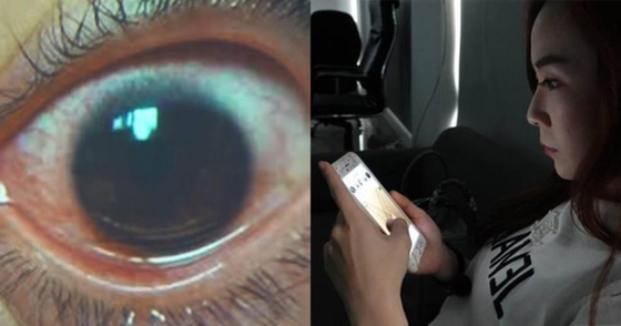 지난 2년간 스마트폰 화면 밝기를 최대로 설정한 채 사용한 여성의 각막에 500개의 구멍이 생겨 충격을 주고 있다. [아시아 와이어=트위터 캡처]