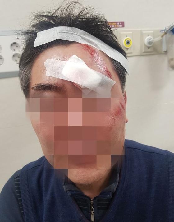22일 더불어민주당 소속 강북구의원 최모씨에게 폭행 당한 동장 조모씨. [뉴시스]