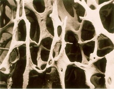 골다공증 뼈의 단면을 확대해 보면 구멍이 많고 커서 앙상한 나뭇가지 모양이다. [중앙포토]