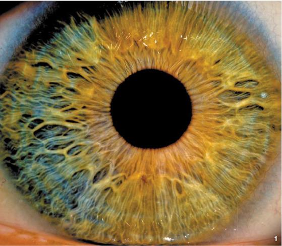 눈 미용과 건강에 대한 관심이 높아지면서 콘택트 렌즈를 통한 안구질환 치료ㆍ진단 관련 특허가 증가하고 있다. [중앙포토]