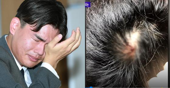 밴드 더이스트라이트의 멤버 이석철 군이 공개한 자신의 상처 사진. [일간스포츠·JTBC]