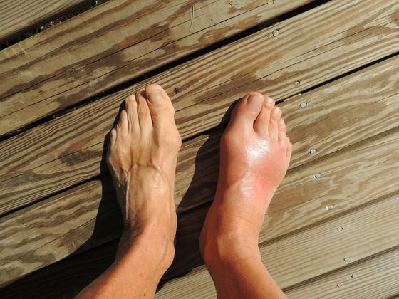 통풍으로 부은 발(오른쪽)과 정상적인 발. 통증염증반응 등으로 인해 바람만 닿아도 극심한 고통을 느끼게 된다.