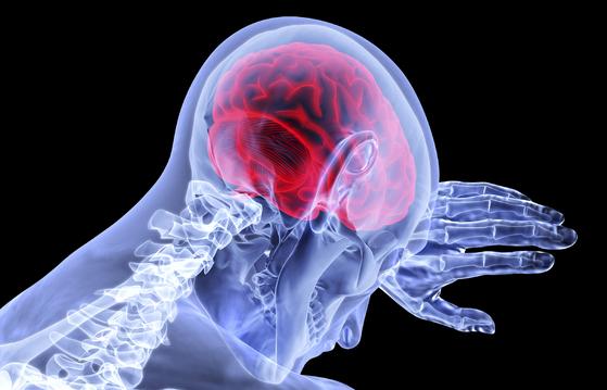 정신질환의 원인과 치료가 뇌를 중심으로 이루어지고 있다. 신경학적 치료 약물이 개발되면서, 치료 효과도 좋아졌다. [사진 pixabay]