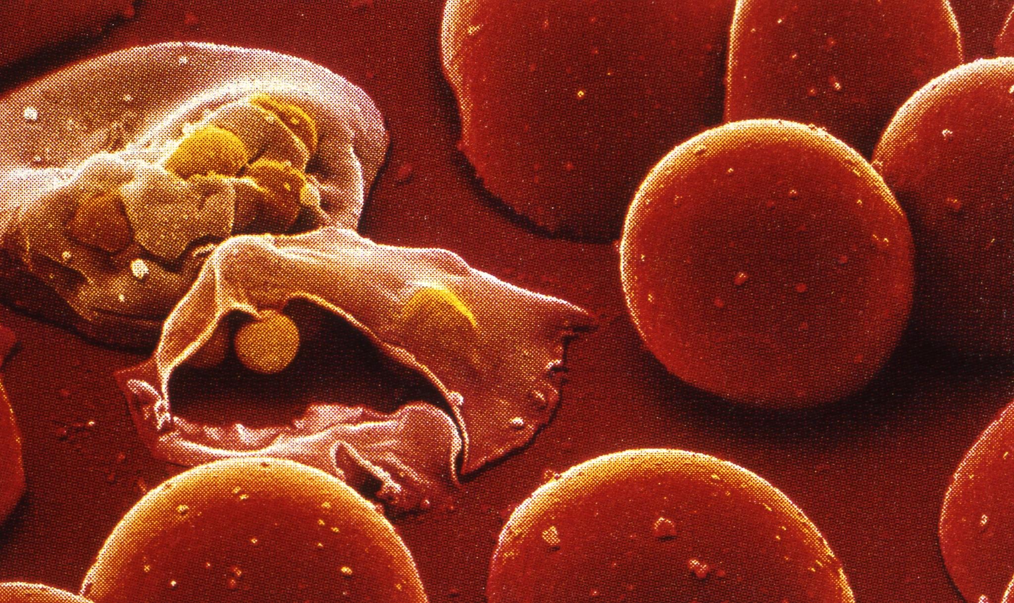 말라리아 원충의 침입과 증식 후 손상된 적혈구 모습. [중앙포토]