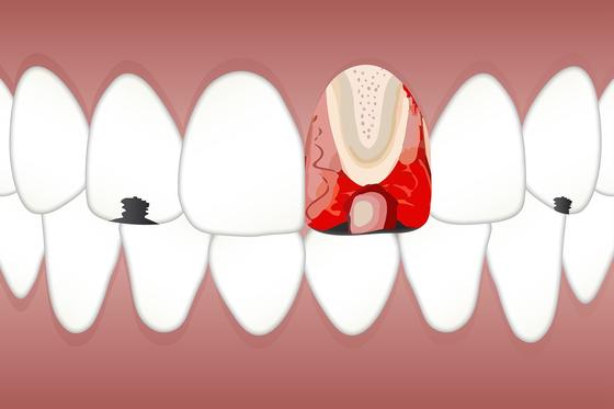 치아 속에도 혈관과 신경조직이 움직이고 있습니다. [사진 pixabay]