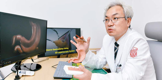 류승완 교수가 3D 복강경을 이용해 위를 절제하는 비만 수술법에 관해 설명하고 있다. 김동하 기자