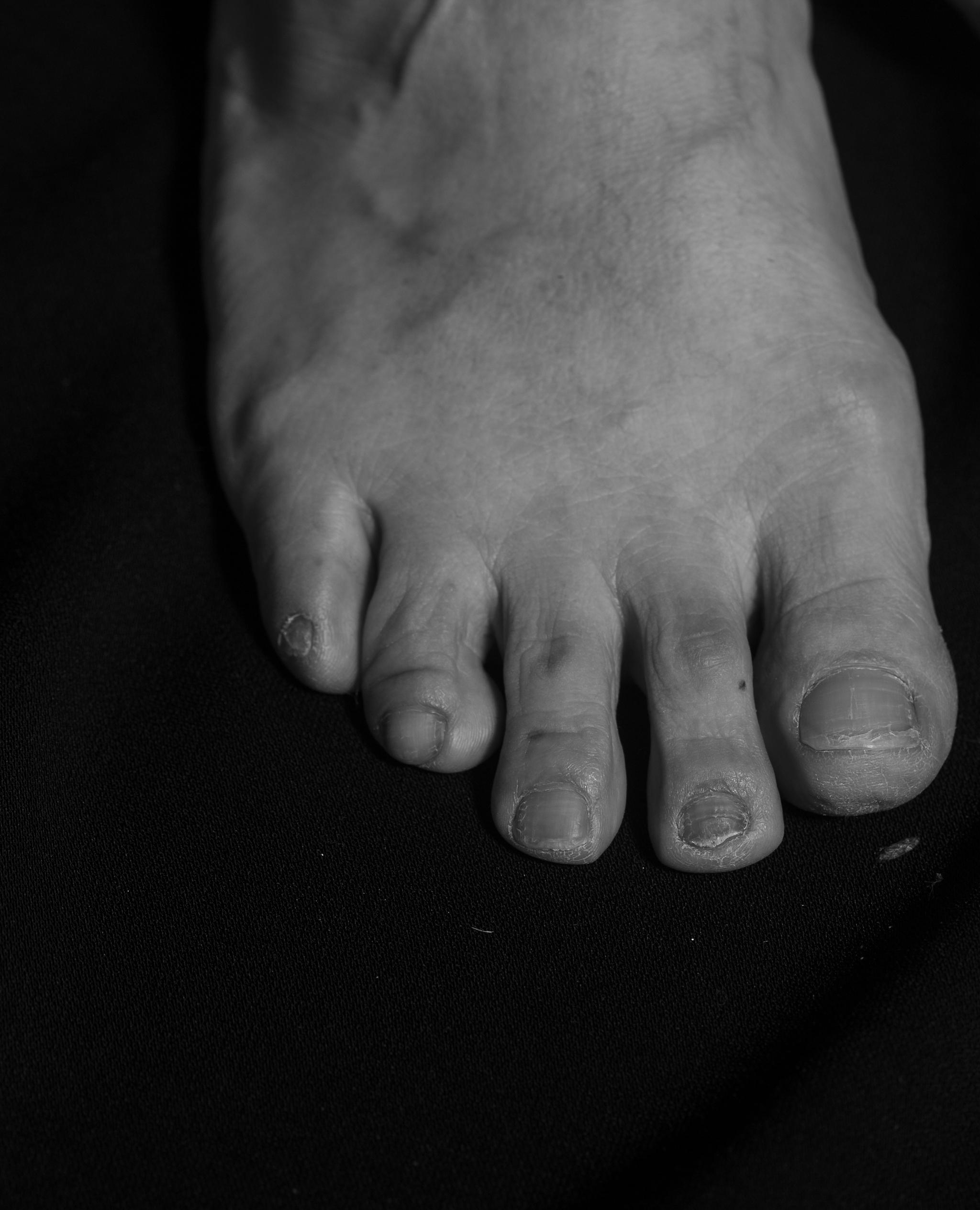 상대적으로 긴 두 번째 발가락 발톱이 빠지고 나고 쪼개지고 갈라지기도 했다. 충격 때문에 뿌리가 상해서 생긴 증상이다. 의사가 영양제를 바르라고 권유했지만, 페디큐어를 할 필요도 없으니 그냥 둔다고 했다.
