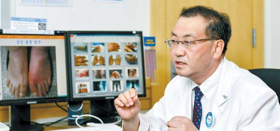 송정수 교수는 머지않아 안전하고 효과적인 통풍 치료제가 개발될 것으로 전망했다. 프리랜서 김동하
