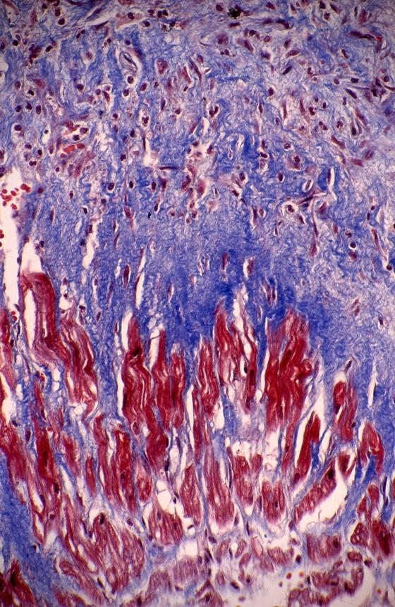 푸른섬유조직과 붉게 염색된 심근세포(트리크롬염색, 400배 촬영) [중앙포토]