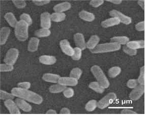고세균의 일종인 니트로조테누이스 충부켄시스(Nitrosotenuis chungbukensis) MY2 균주. 산성 토양 속에서 온실가스인 아산화질소를 생성하는 것으로 확인됐다. [사진 국립생물자원관]