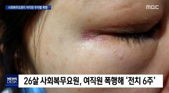 [MBC 캡처]