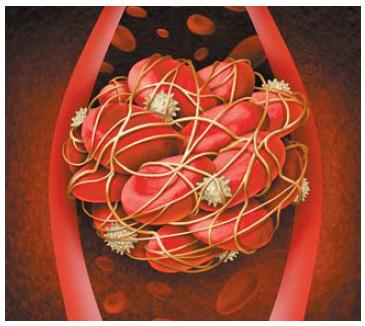 [건강한 가족] 혈관 막는 혈전, 좋은 콜레스테롤 수치 높여 예방