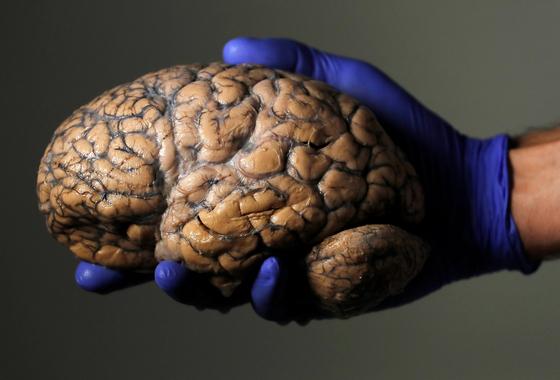 인간의 뇌. 나이가 들면서 뇌세포 유전체 속에 돌연변이가 발생하고 이로 인해 알츠하이머가 생길 수 있는 것으로 나타났다. [로이터=연합뉴스]