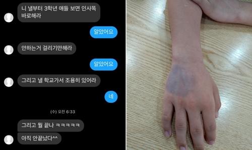 가해 학생이 보낸 문자(왼쪽)와 피해 학생의 멍든 손. [연합뉴스]