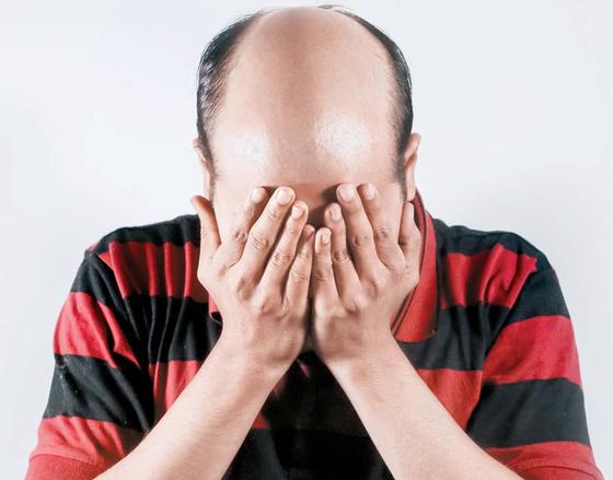 [라이프 트렌드] 벌써 탈모 고민 2030 남성, '인터넷 처방'에 빠지면 위험!