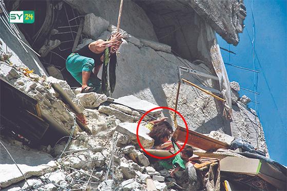 7개월 동생 살리려고 ... 시리아 내전의 비극