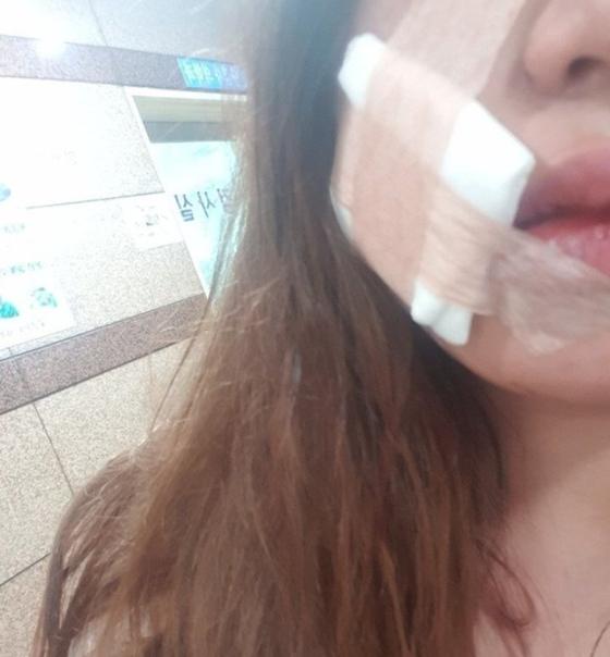 남양주 데이트 폭력 사건 피해자. [뉴스1]