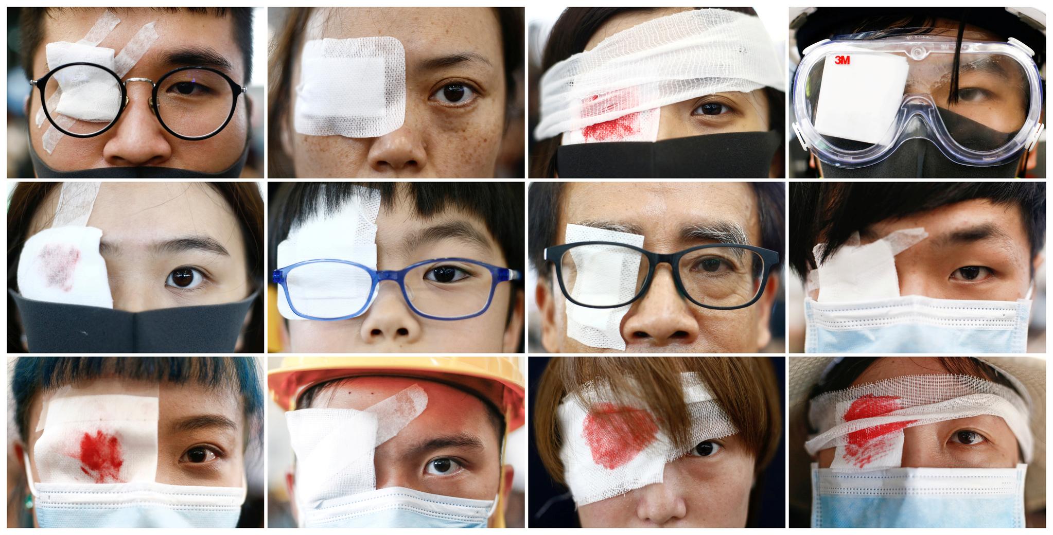 시위 도중 경찰이 쏜 진압장비 탄환에 맞아 한 여성이 실명한 것에 항의하며 12일 중국 홍콩 공항터미널 안에서 붕대와 안대를 착용한 시위대. [로이터=연합뉴스]