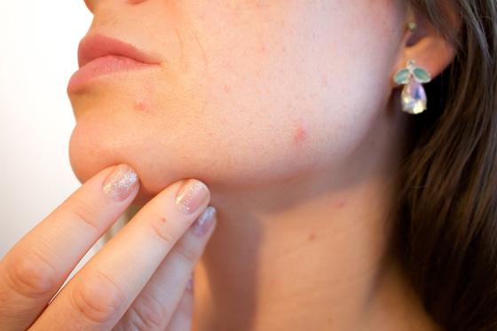 호르몬이 변하는 갱년기에는 발한, 두근거림, 안면홍조 등의 증상이 나타난다. [사진 pxhere]